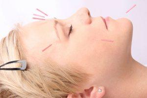 http://www.sedum-zentrum.de/wp-content/uploads/Akupunktur-300x200.jpg